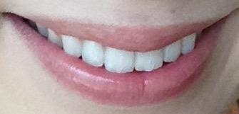 アパガードリナメル 歯磨き粉