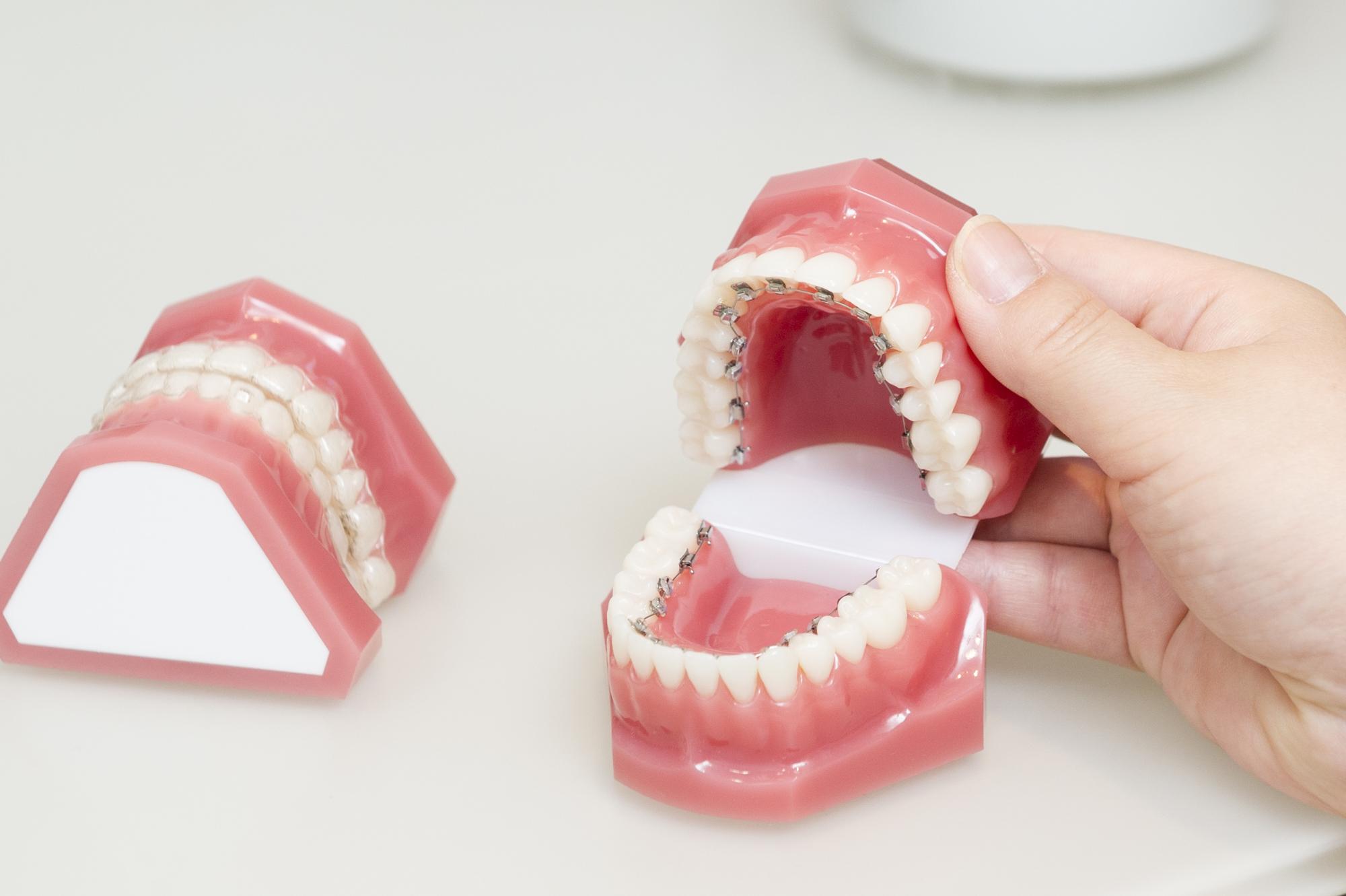 歯並び矯正 沖縄CLASS-A