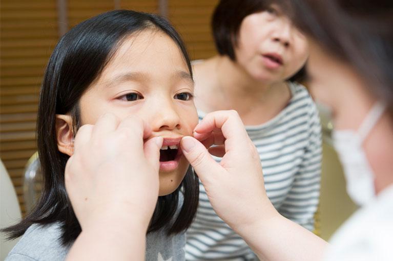 お子様の矯正治療、小児矯正の重要性